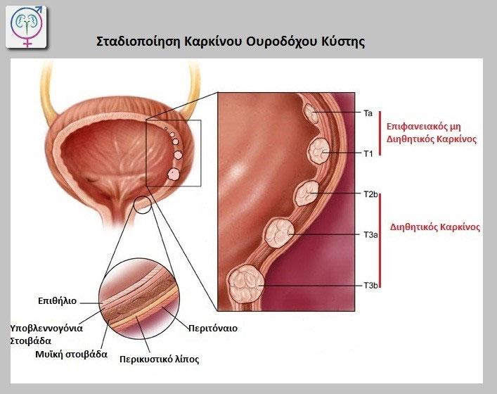 Расположение мочевого пузыря у мужчин фото.